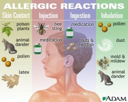 allergic reaction are common side effects of drugs