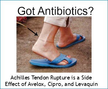 achilles tendon rupture is a side effect of avelox, cipro, and levaquin
