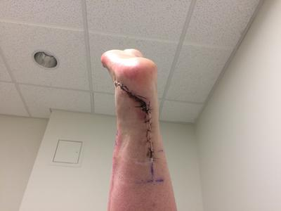 One of 2 scars