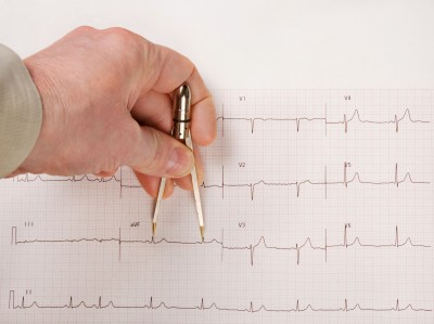 A prolonged qt interval can be deadly side effects of many different drugs. long qt syndrome, side effect