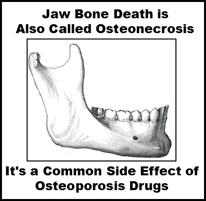 osteoporosis drugs can lead to osteonecrosis of the jaw