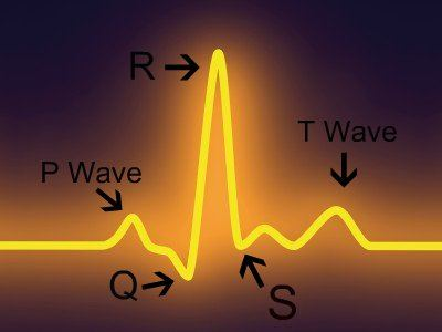 a prolonged qt interval can be measured easily